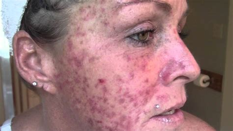 kevin trudeau cure for skin itch picture 9