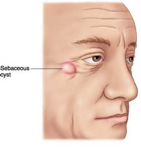 nodnuel cystic acne medical definition picture 14