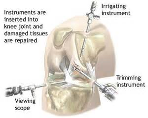 arthroscopy of knee joint picture 17