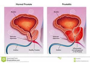 prostatitis picture 9
