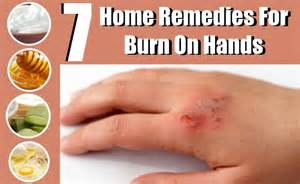 burn pain relief picture 2