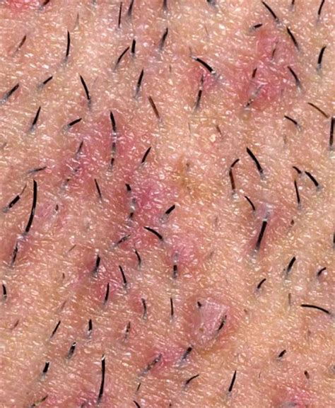 get rid of inflamed hair follicles ob vulva picture 18