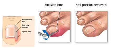 self removal of ingrown toenail picture 3