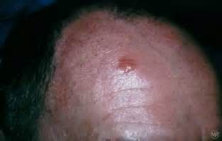 head acne as a symptom of cancer picture 13