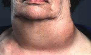 how rapidly does anaplastic thyroid grow picture 6