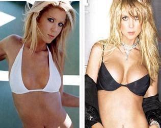 fenugreek breasts picture 5
