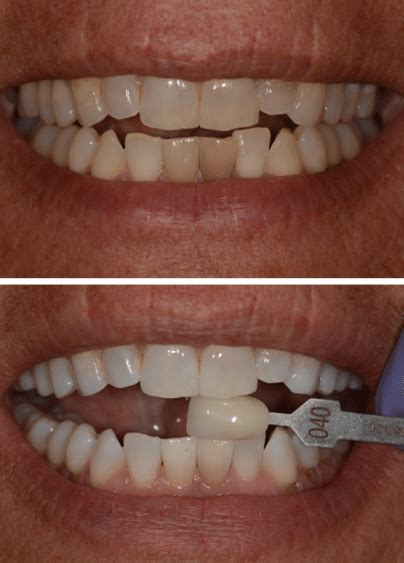 columbia teeth whitening picture 6
