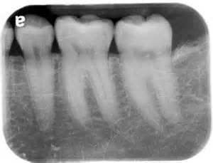 gum grafting picture 9