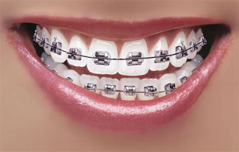 teeth braces picture 11