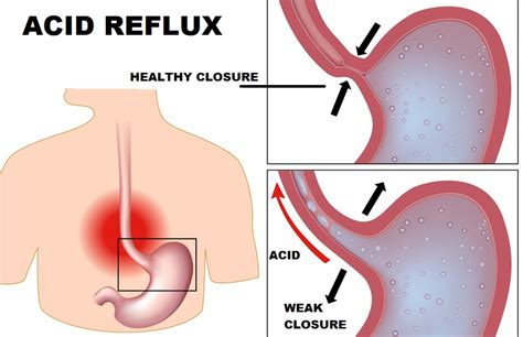 acid reflux caused by full bowels picture 13