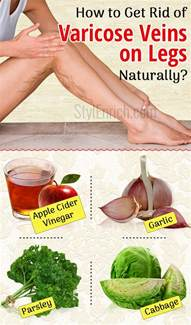 getting rid vericous veins naturally picture 3