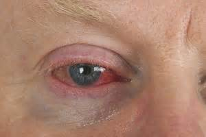 can joint pain cause blurry vision picture 9