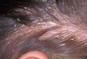 can thyroid cause red scalp picture 7