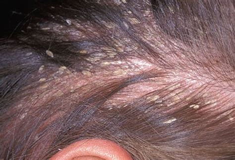 treatment of hair loss ketoconazole picture 13