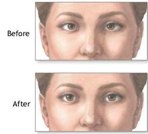 double vision eye muscle surgery picture 9