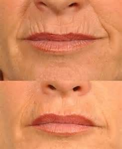 upper lip wrinkle remover picture 14