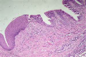 icd 9 erythematous of bladder picture 8