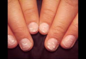 nail fungus and herpes picture 3