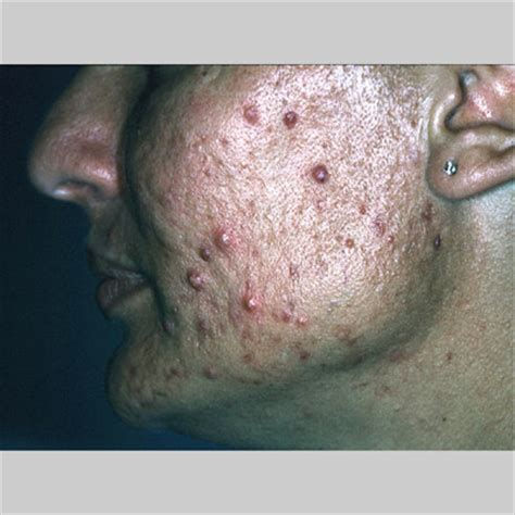 drain an acne cyst picture 14
