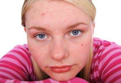adolescent acne picture 13