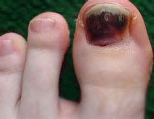 what causes nail fungus picture 9