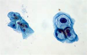 pap smears test genital warts picture 1