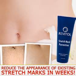 revitol stretch marks results picture 1