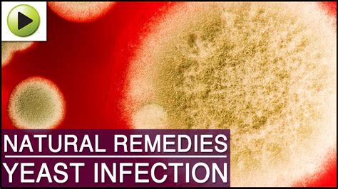 relief from yeast infection itching picture 15