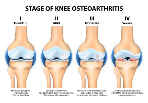 knee joint degeneration picture 7