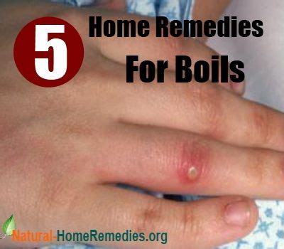 boils remedy picture 15