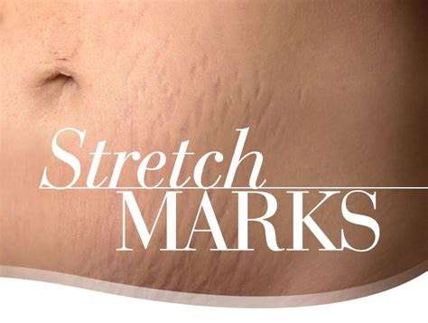stretch mark near groin picture 10