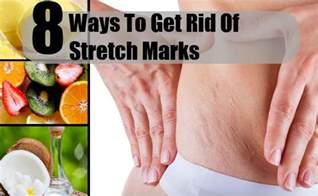 home remedies to get rid of stretch marks picture 5