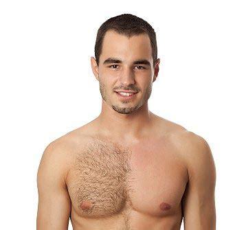 atlanta hair removal for men picture 11