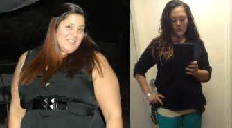is aetna difficult to get weight loss surgery picture 8