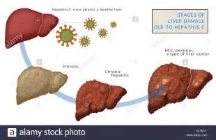 stages of liver cirrhosis picture 10