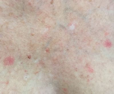 pictures of early skin cancer on chest picture 5