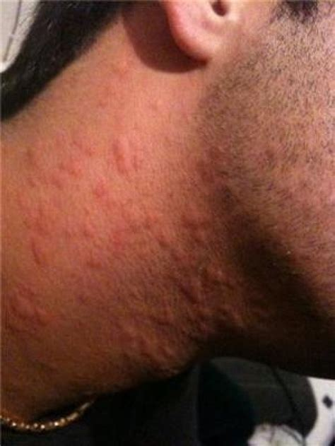 skin rash hives pictures picture 10