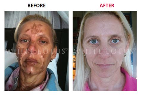 derma rolling before and after pics picture 6