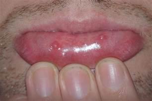 fibroma of lower lip picture 5