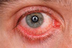 symptoms viral conjunctivitis bacterial conjunctivitis picture 9