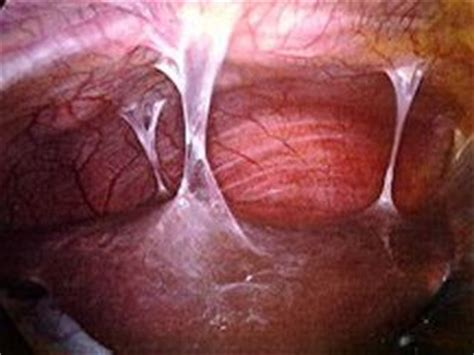 can you still feel scare tissue after gallbladder picture 7