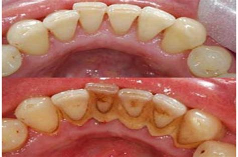 can dental hygients remove cement from teeth with picture 10