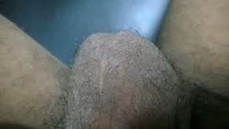 calium in the shaft on my penis picture 14