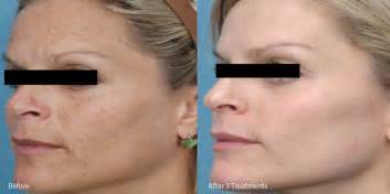 microneedling before and after picture 1