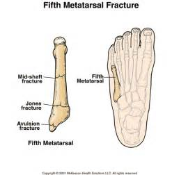 injury to mtp joint of fifth metatarsal picture 3