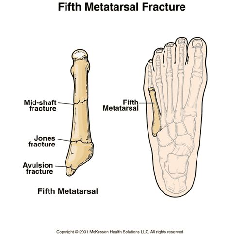 5th metatarsal pain diagnosis picture 9