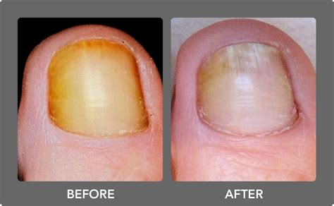 premier nail fungus chicago picture 5