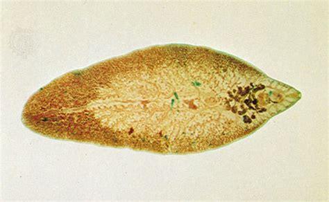 fasciola hepatica human liver fluke picture 2