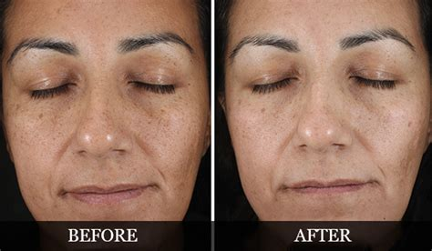 ageing skin care tips picture 5