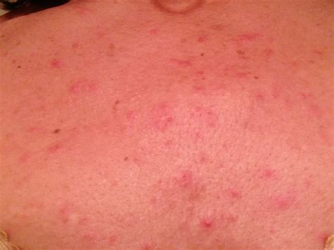 yeast infection and folliculitis picture 10